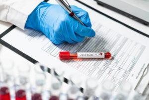 Мобильные группы в Ереване взяли 5628 образцов для тестирования коронавируса