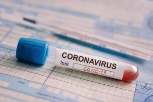 В России растет заболеваемость ковидом: еще почти 6,5 тысяч зараженных выявлено за сутки, умерли 150 человек