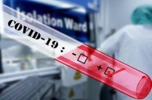 В Армении за сутки зарегистрировано 2175 новых случаев заражения коронавирусом, умерли 28 человек