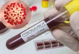 В Армении за сутки зарегистрировано 1193 новых случаев заражения коронавирусом