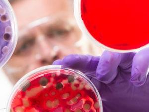 Что представляет собой лечение стволовыми клетками?