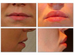Хейлопластика: виды хирургического увеличения губ