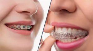 Капы для выравнивания зубов: виды