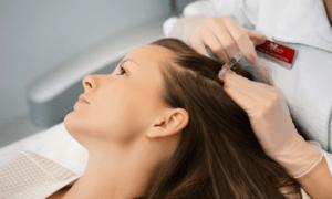 Лечение волос PRP: результаты постоянные или временные?