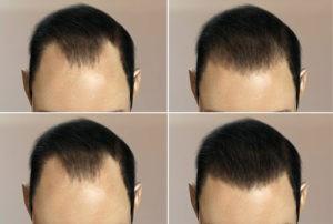 Как происходит пересадка волос?